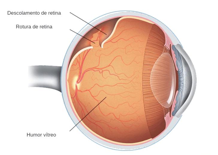 Conheça os diferentes Tipos de descolamento de retina