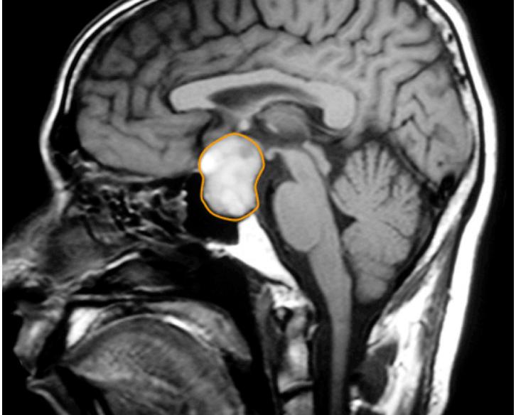 Adenoma tireotrófico: o que é, sintomas e como tratar