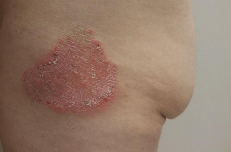 Dermatofitose: sintomas e tratamento