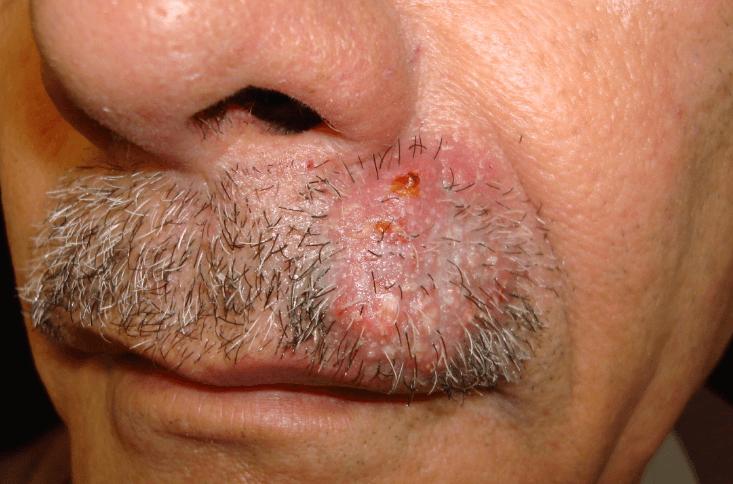 Sycosis Barba