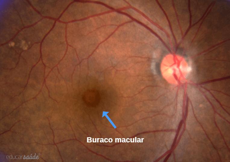 Buraco macular: o que é e como tratar