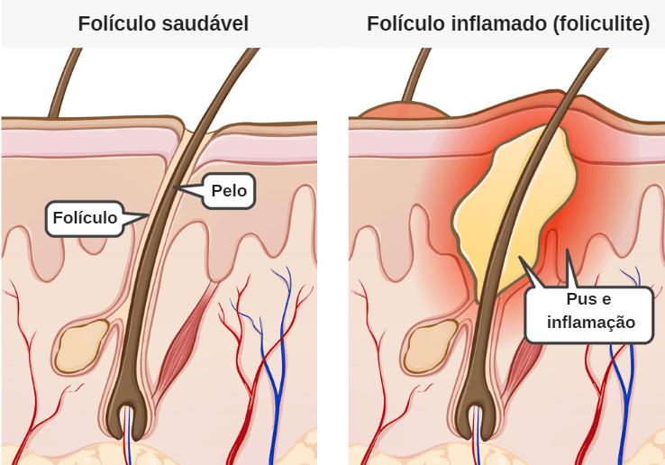 O que é e como tratar a foliculite