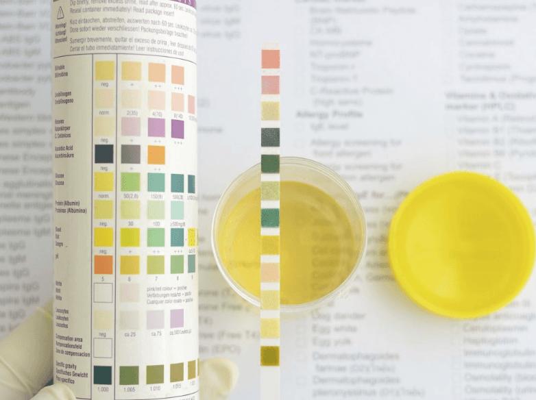 Interpretar Os Resultados Do Exame Caseiro Para Infecção Urinária