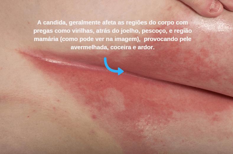 Sintomas De Candidíase Na Pele