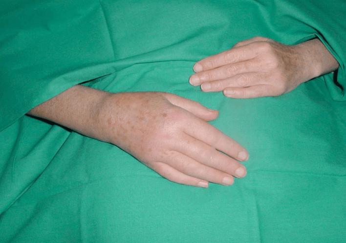 Sintomas De Distrofia Simpático Reflexa