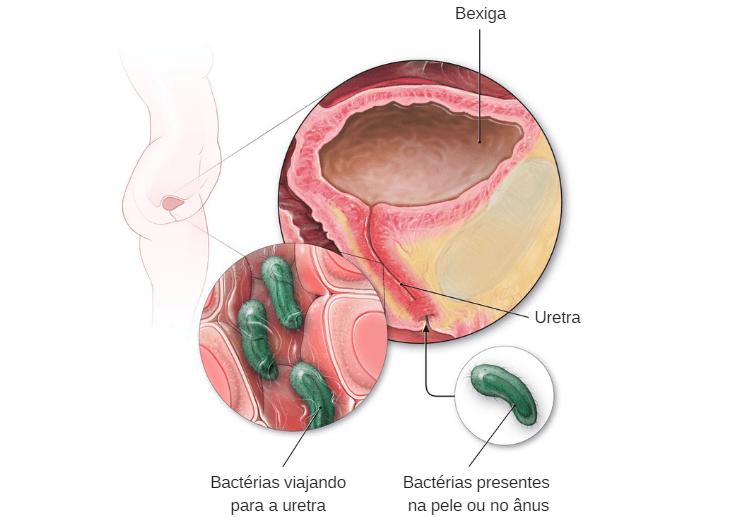 Sintomas de infecção urinária mais comuns