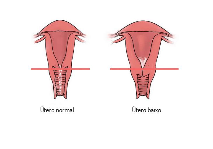 Útero baixo: o que é, sintomas, causas e como é feito o tratamento