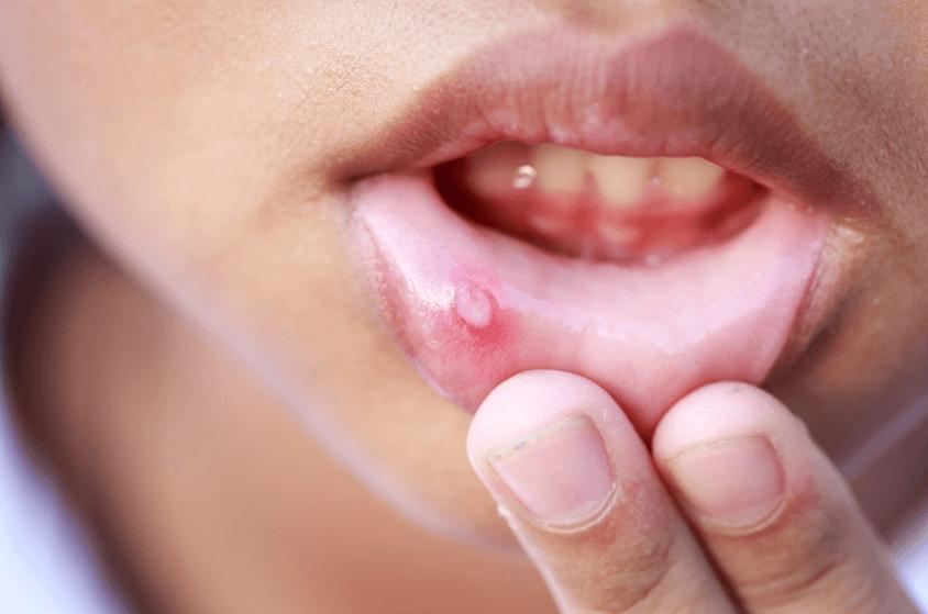 Aftas na boca: O que são, causas, sintomas e como tratar