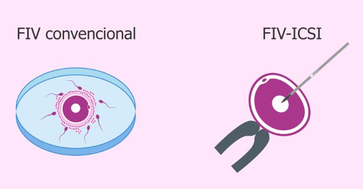 O que é e como é feita a Fertilização In Vitro (Passo a passo)