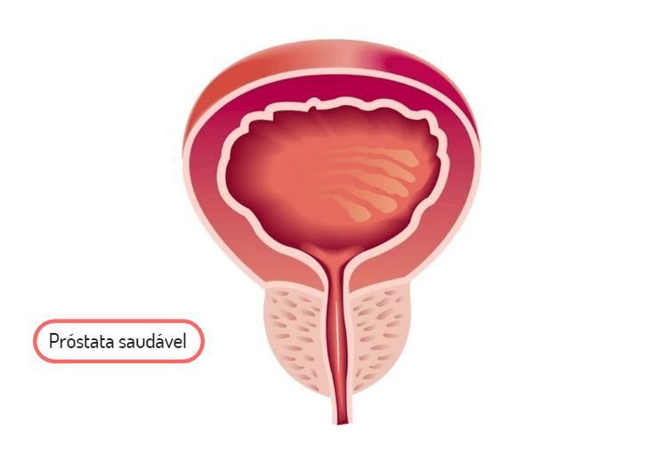 Tudo o que você precisa conhecer sobre a Próstata
