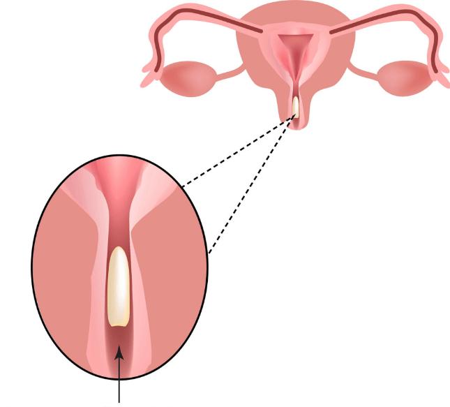 Introdução De óvulos Vaginais De Bicarbonato De Sódio