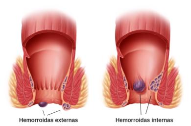 10 Sugestões De Tratamentos Para Hemorroidas Externas