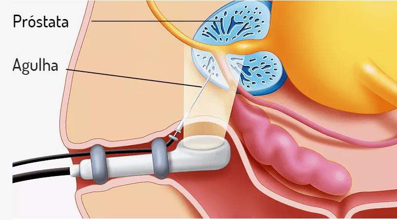 Biópsia da próstata: entenda como é feita e como interpretar os resultados