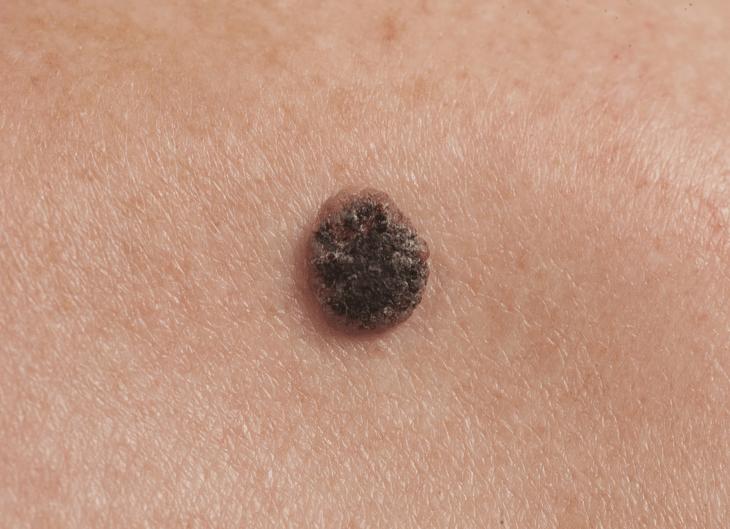 Manchas Escuras E Crescimentos Na Pele Pode Ser Sintoma De Câncer