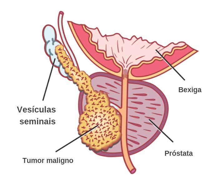 7 Principais sintomas e como curar o câncer de próstata