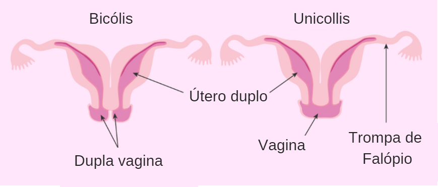 Tipos De útero Didelfo