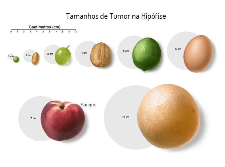 Tipos de Tumor na hipófise