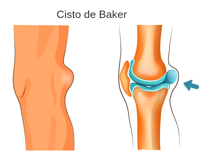 Caroço atrás do joelho pode ser Cisto de Baker