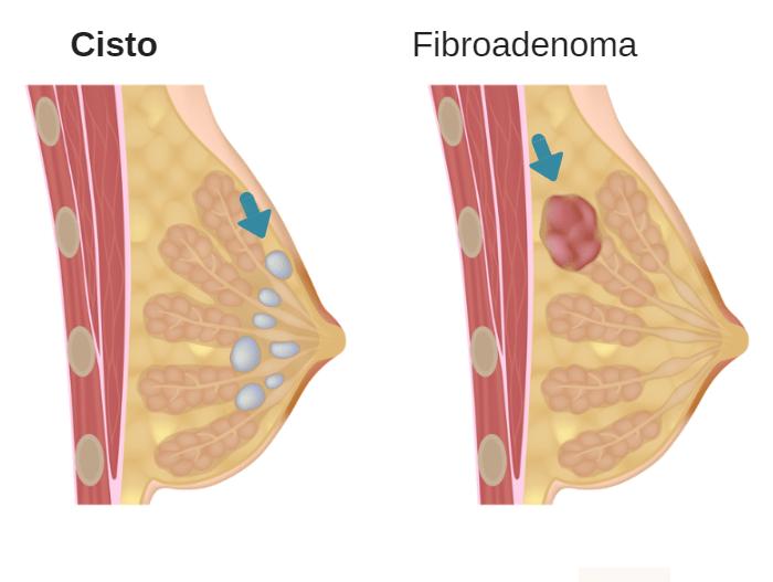 Cisto na mama: o que pode ser, sintomas, tratamentos e risco de virar câncer