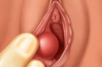 Cisto Na Vagina