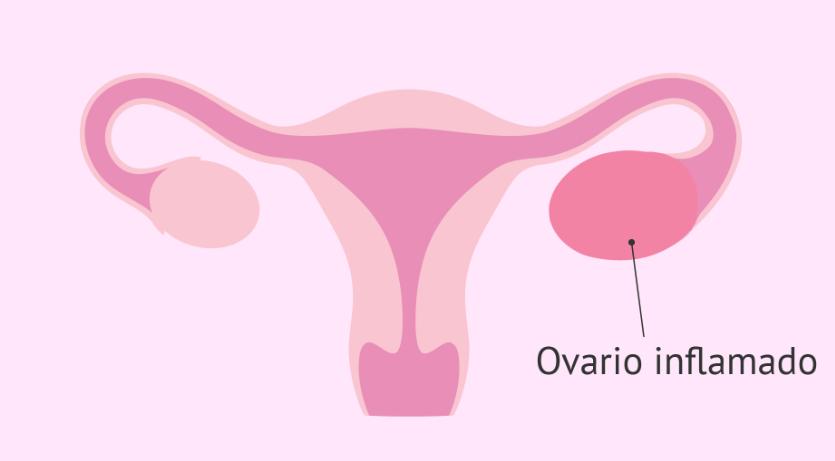 Inflamação no ovário: Sintomas, o que pode ser e como tratar