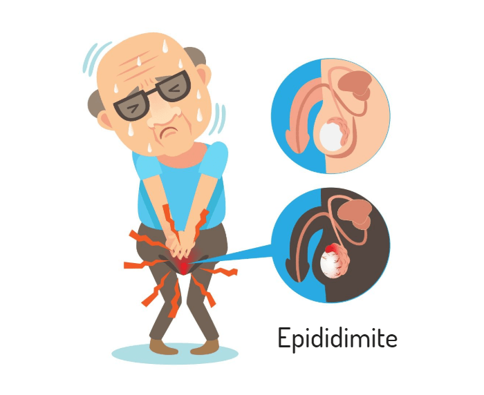 Epididimite: sintomas, causas e como é feito o tratamento