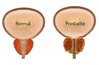 Foto De Prostatite