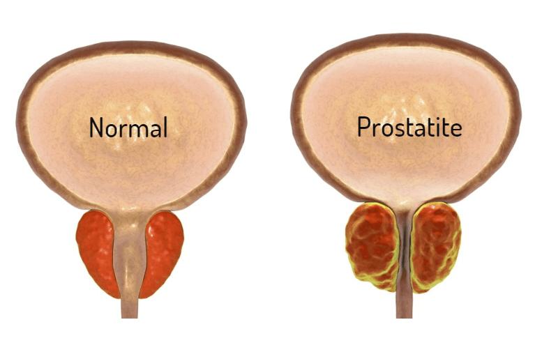 Prostatite: O que é, quais os sintomas e como é feito o tratamento