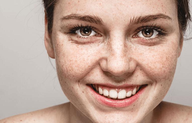 Como saber se as pintas na pele são Sardas ou câncer?