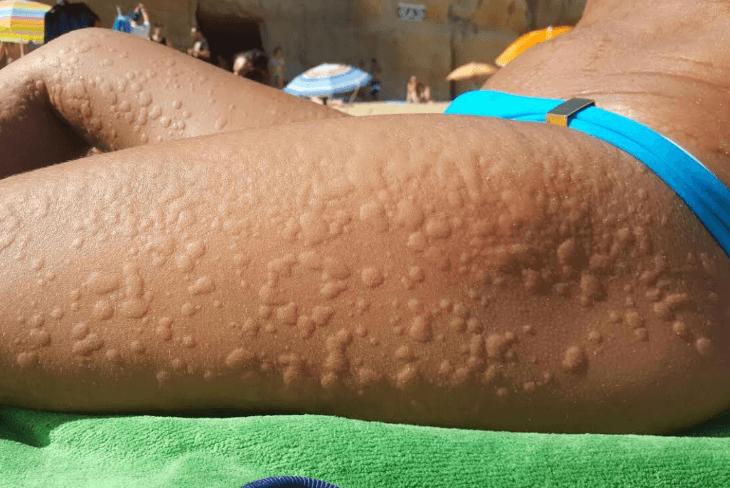 Urticária ao Frio: o que é e quais são os sintomas da alergia