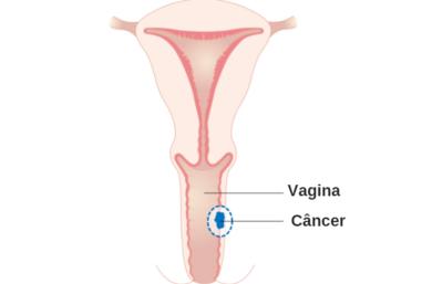 9 Sintomas Que Podem Indicar Câncer Na Vagina