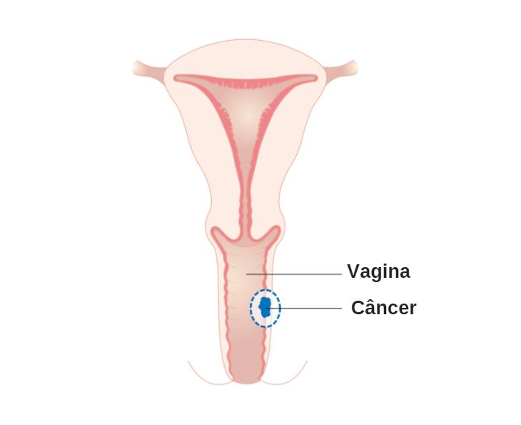 9 Sintomas que ajudam a identificar o Câncer Vaginal, Tipos e como Tratar