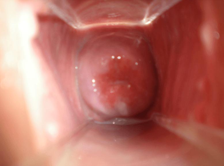 Colo do útero fechado e aberto: o que pode ser, o que fazer e como identificar
