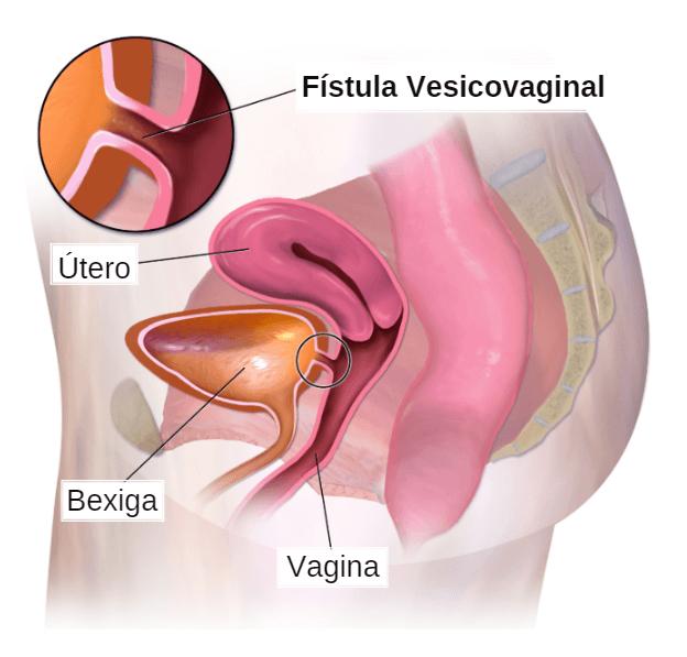 Fístula Vesicovaginal: Conexão anormal entre a bexiga e a vagina