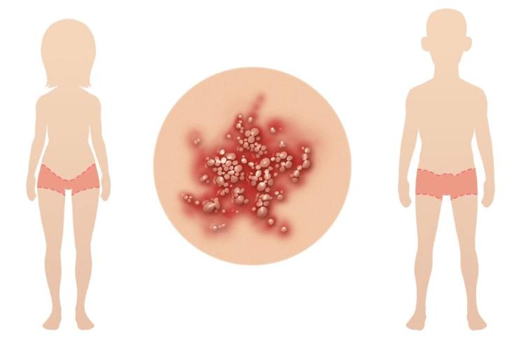 Veja Como São Os Sintomas Da Herpes Genital