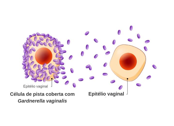 Gardnerella vaginalis: o que é, 9 sintomas e como tratar