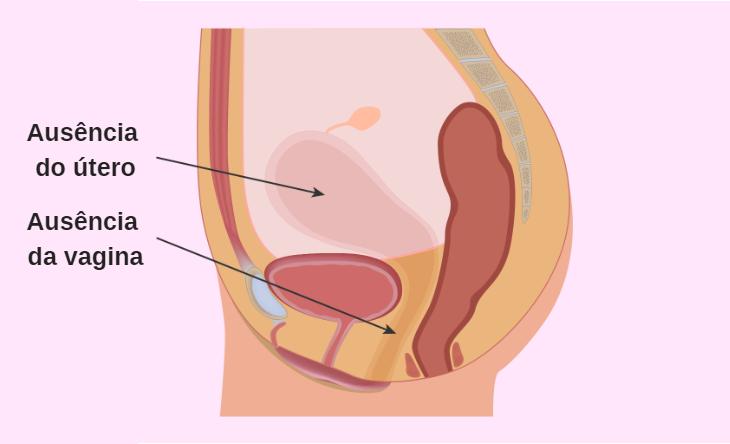 Síndrome de Mayer-Rokitansky-Kuster-Hauser: o que é, sintomas e tratamento