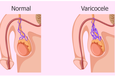 Testículo Normal Vs. Varicocele