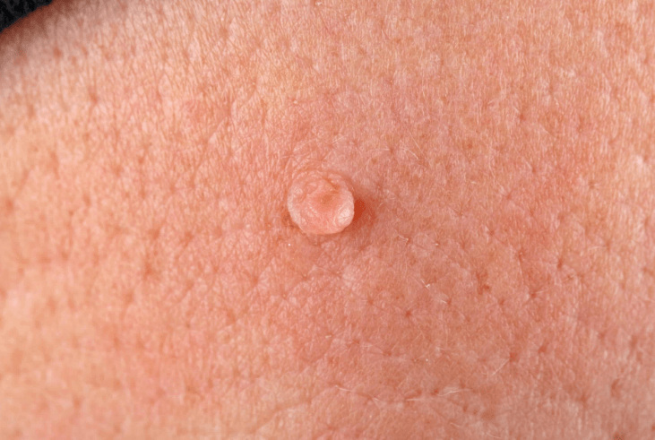 Tratamento para verrugas genitais: Pomadas, laser, eletrocautério + 3 opções