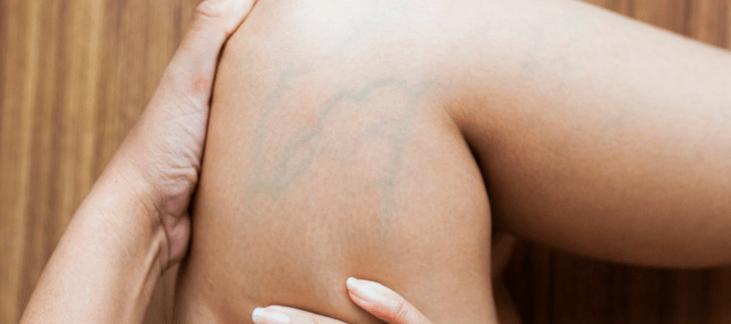 Varizes Pélvicas: O que são, são perigosas, 6 sintomas, causas