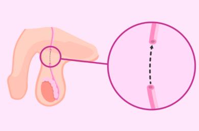 Vasectomia, O Que é, Como é Feita, Vantagens E Desvantagens, Reversão E Preço