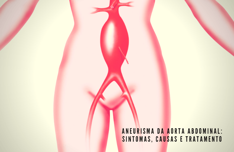 Aneurisma Da Aorta Abdominal, Sintomas, Causas E Tratamento
