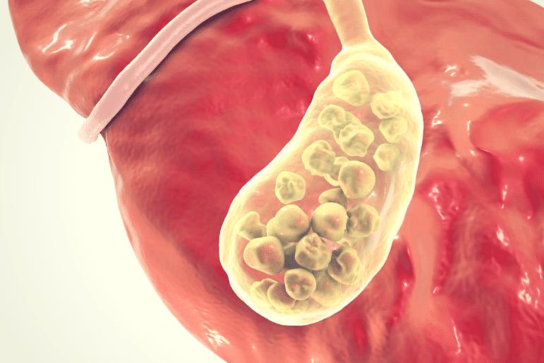 Colecistite Aguda, Sintomas, Causas E Tratamentos