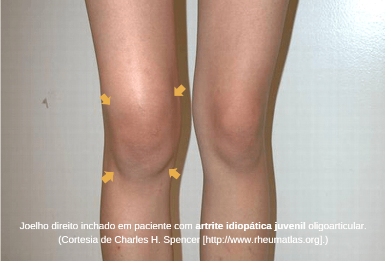 Artrite idiopática juvenil: Causas, Sintomas e tratamentos