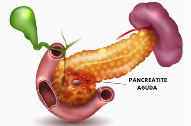 Pancreatite Aguda, O Que é, 6 Sintomas, Tratamentos E Causas